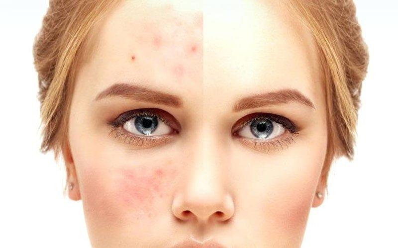 حساسیت پوست در اثر استفاده از براش آرایشی آلوده
